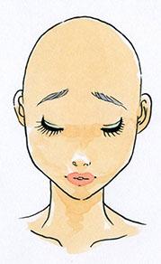 脱毛症(小)